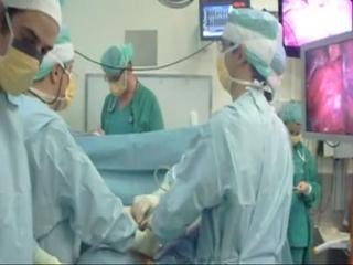 Intervención para extirpar un cáncer de pulmón